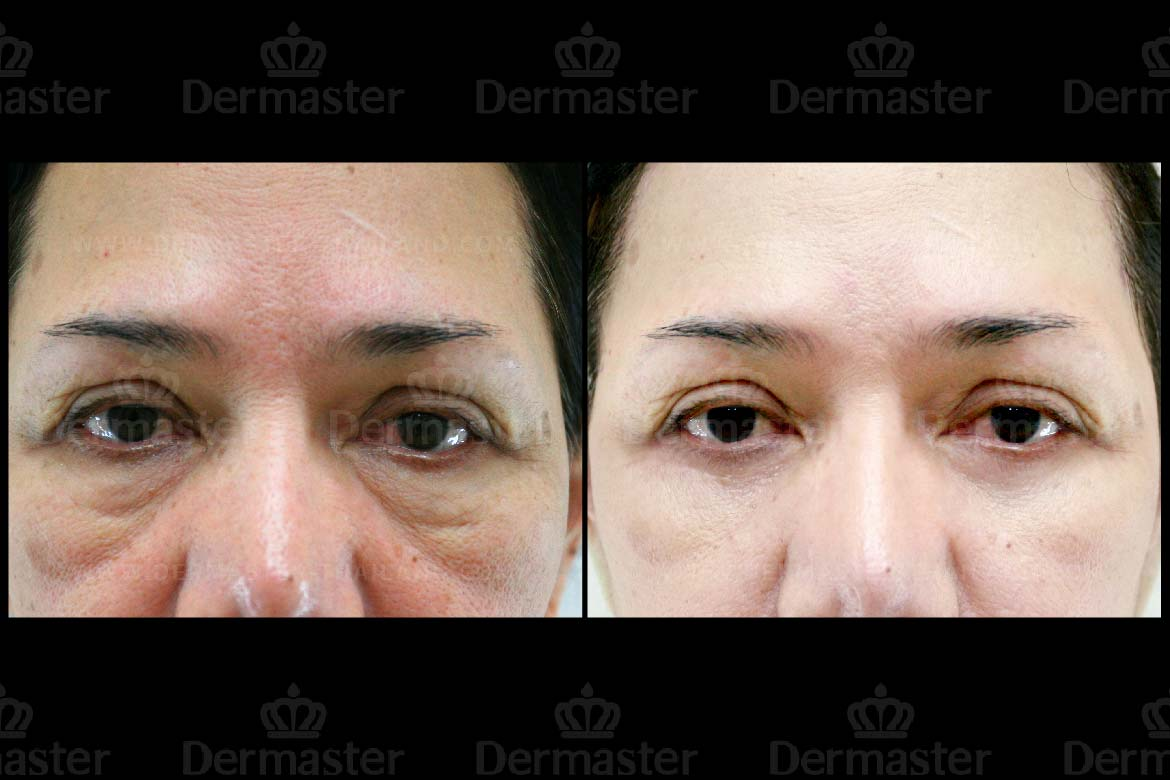 service-dermaster-lower-blepharoplasty-1