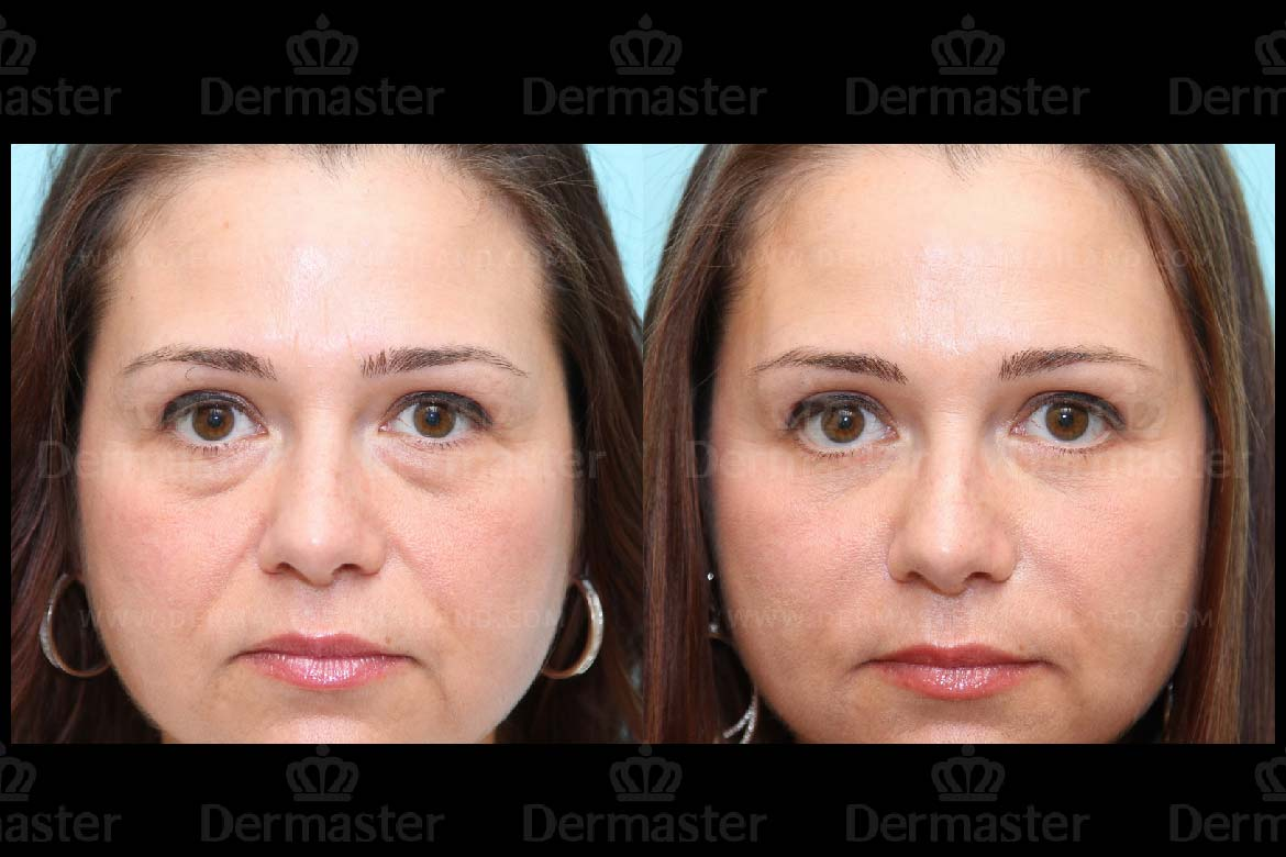 service-dermaster-lower-blepharoplasty-2