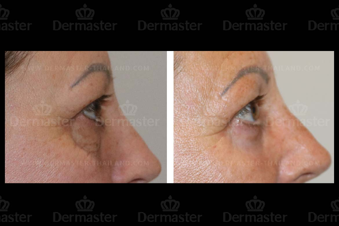 service-dermaster-lower-blepharoplasty-3