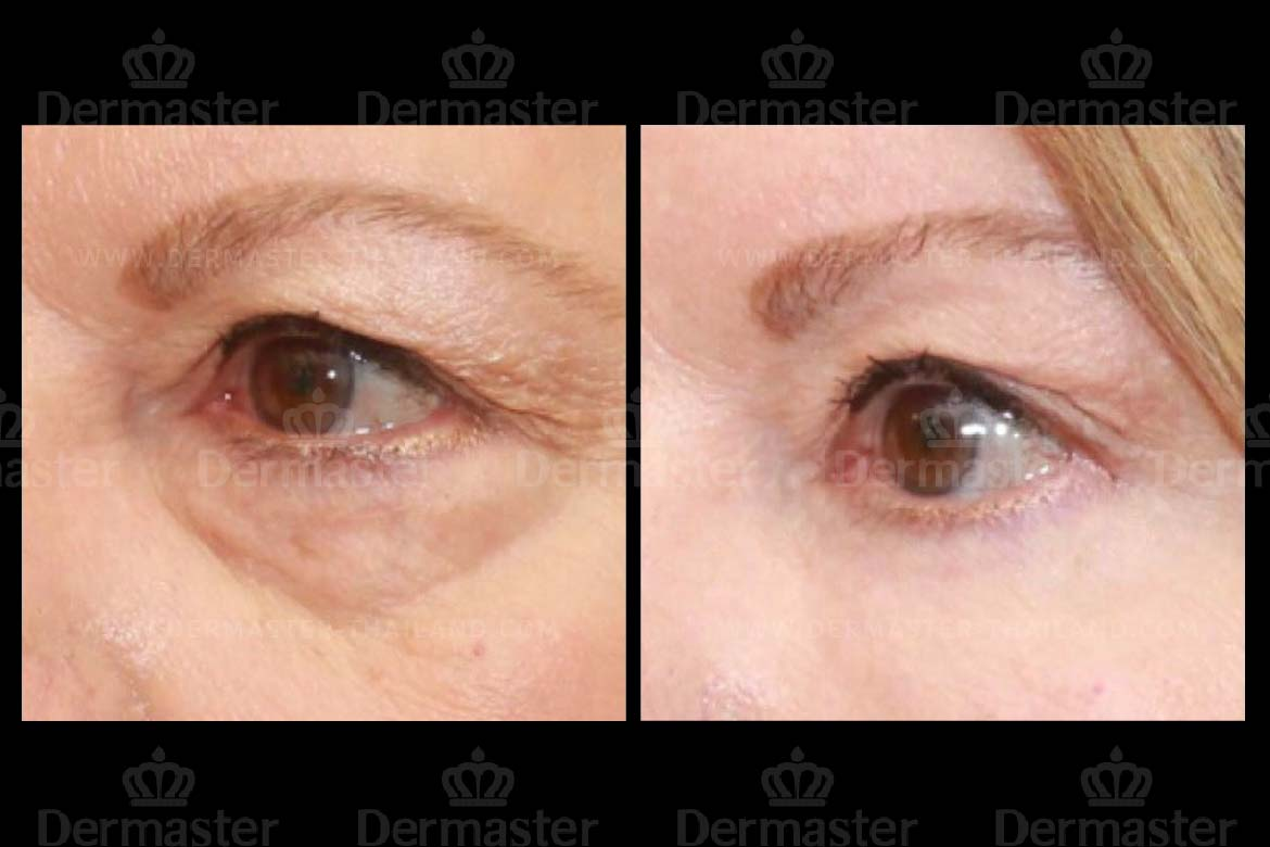 service-dermaster-lower-blepharoplasty-4