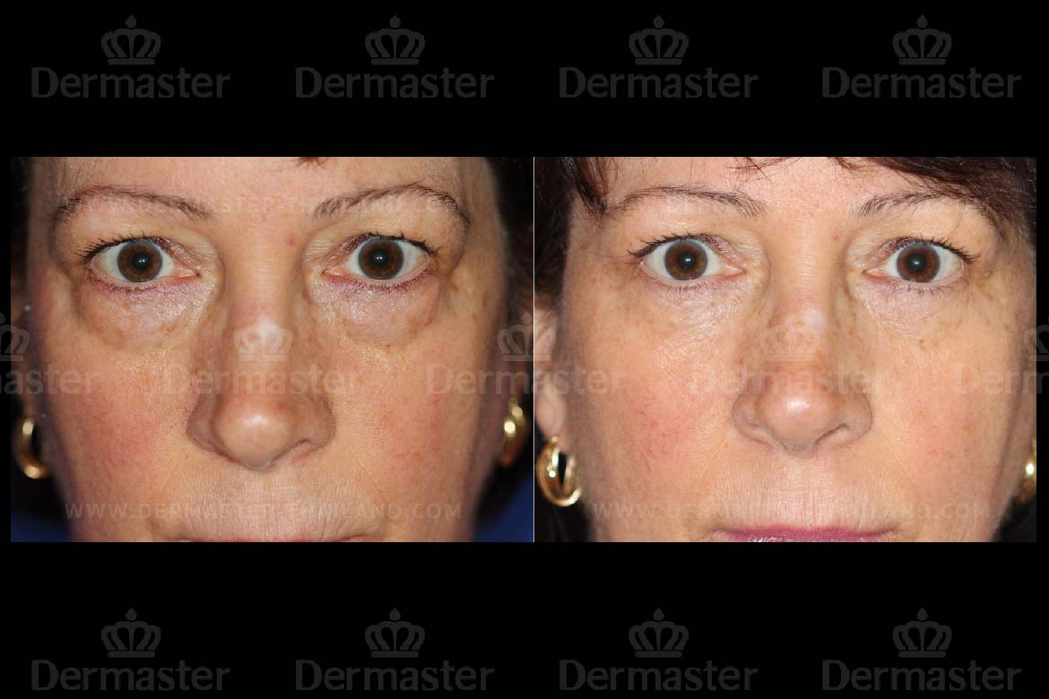 service-dermaster-lower-blepharoplasty-5