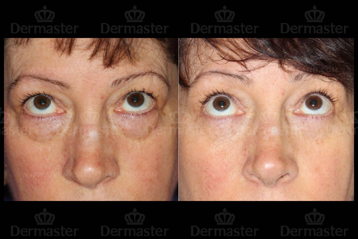 service-dermaster-lower-blepharoplasty-6