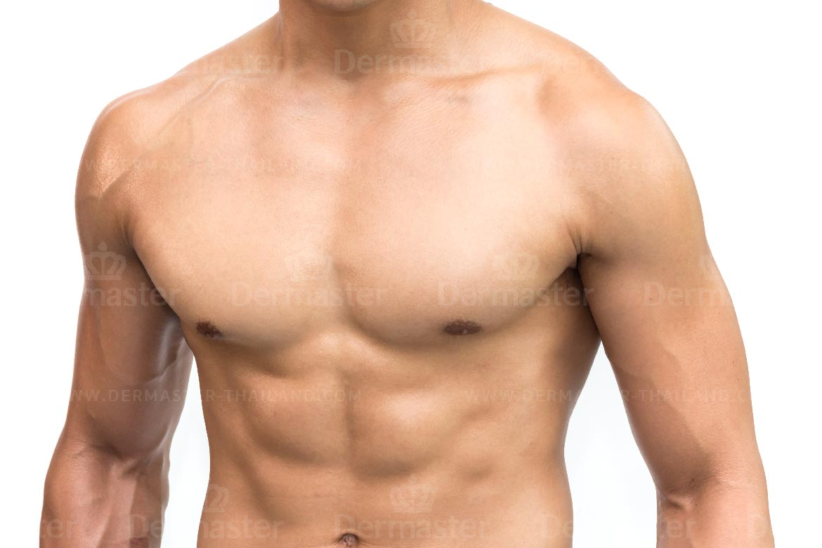 service-dermaster-male-breast-reduction-3