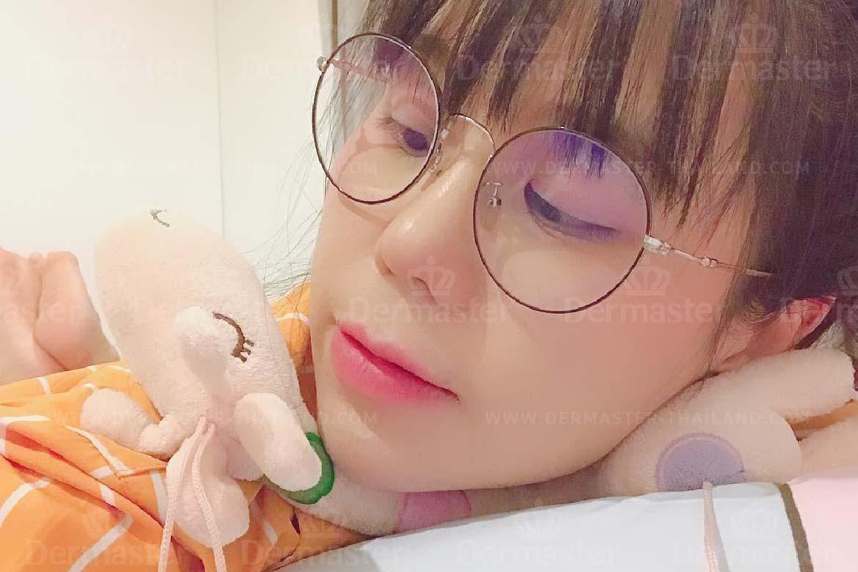جراحة تجميل الأنف 3