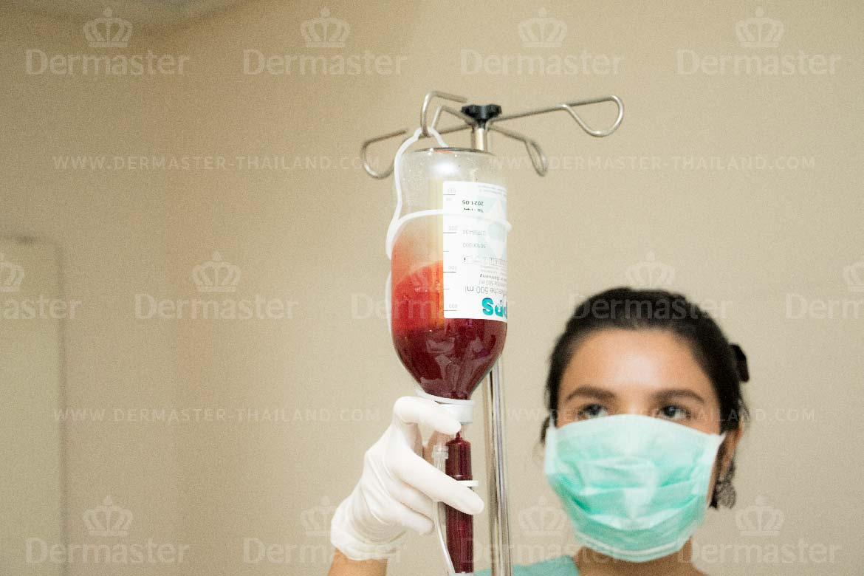 โอโซนบำบัด (Oxygen Booster) 4