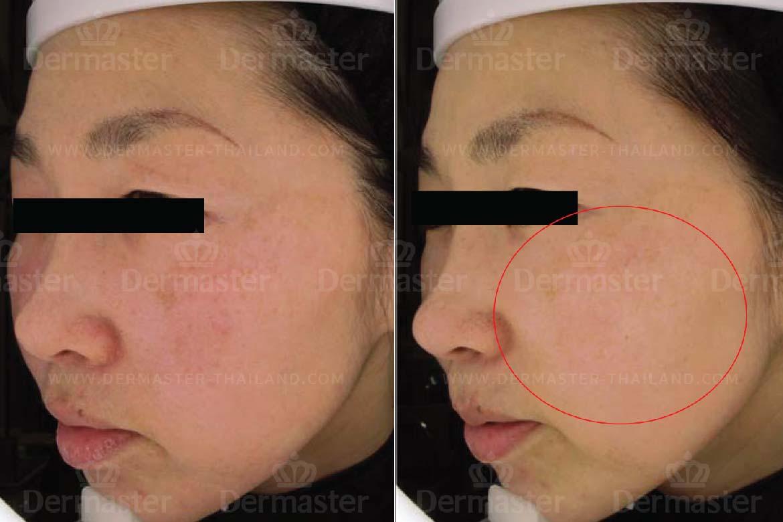 Skin Reju 4