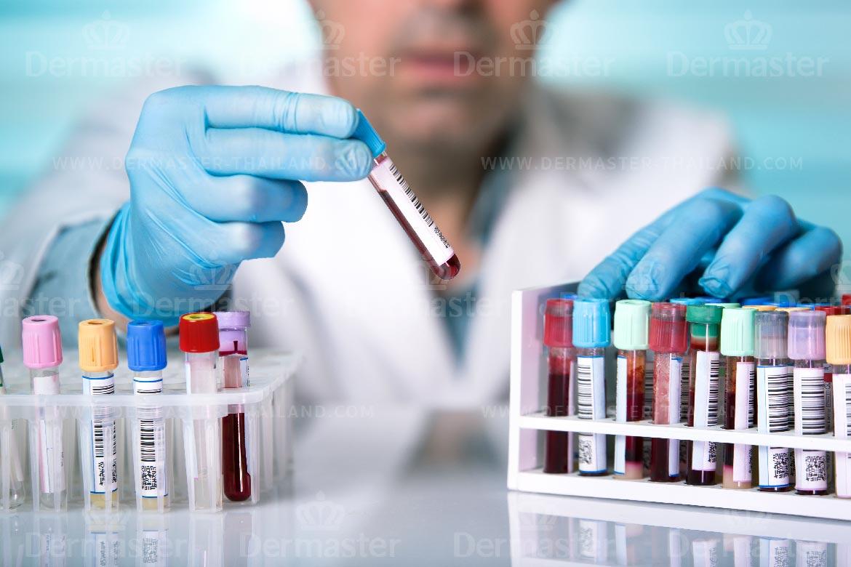 肿瘤标志物检测 2