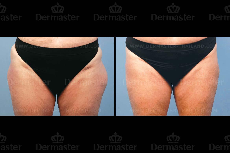 جراحة شفط الدهون مع ةلشد 2