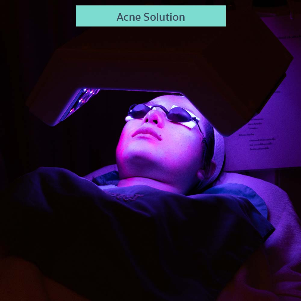 why-dermaster-acne-solution-1