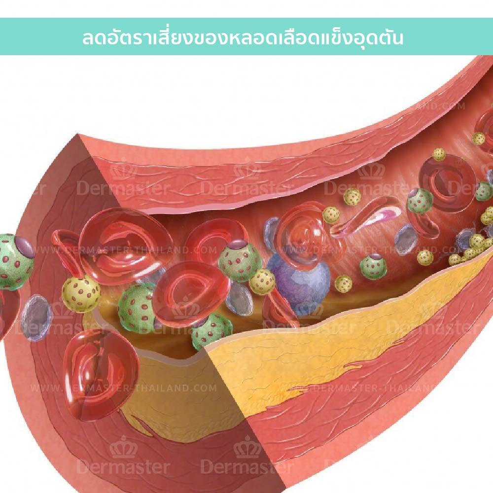 螯合疗法/重金属排毒 9