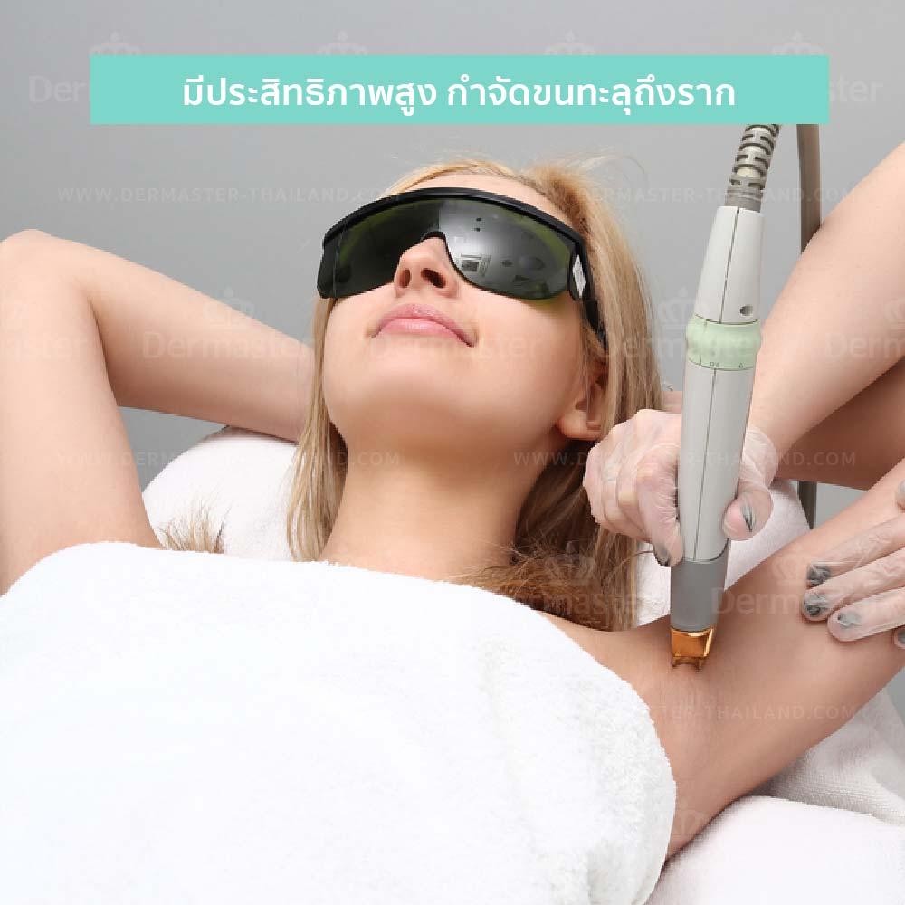 กำจัดขนถาวร Coolglide Hair-removal (YAG) 8