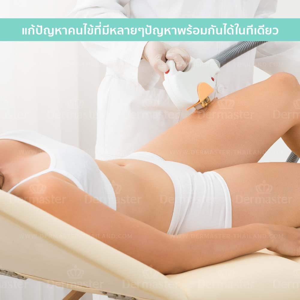กำจัดขนถาวร Coolglide Hair-removal (YAG) 9