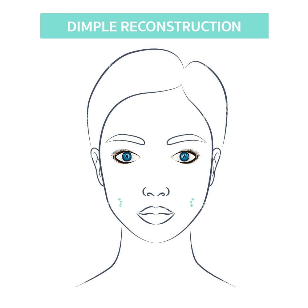 Dimple Reconstruction 7