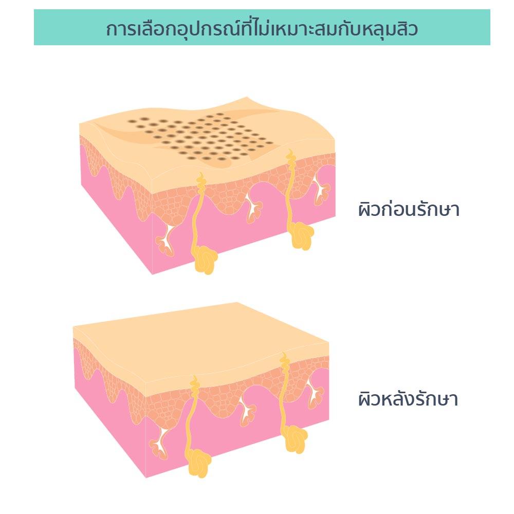 รักษาหลุมสิว (eMatrix) 8