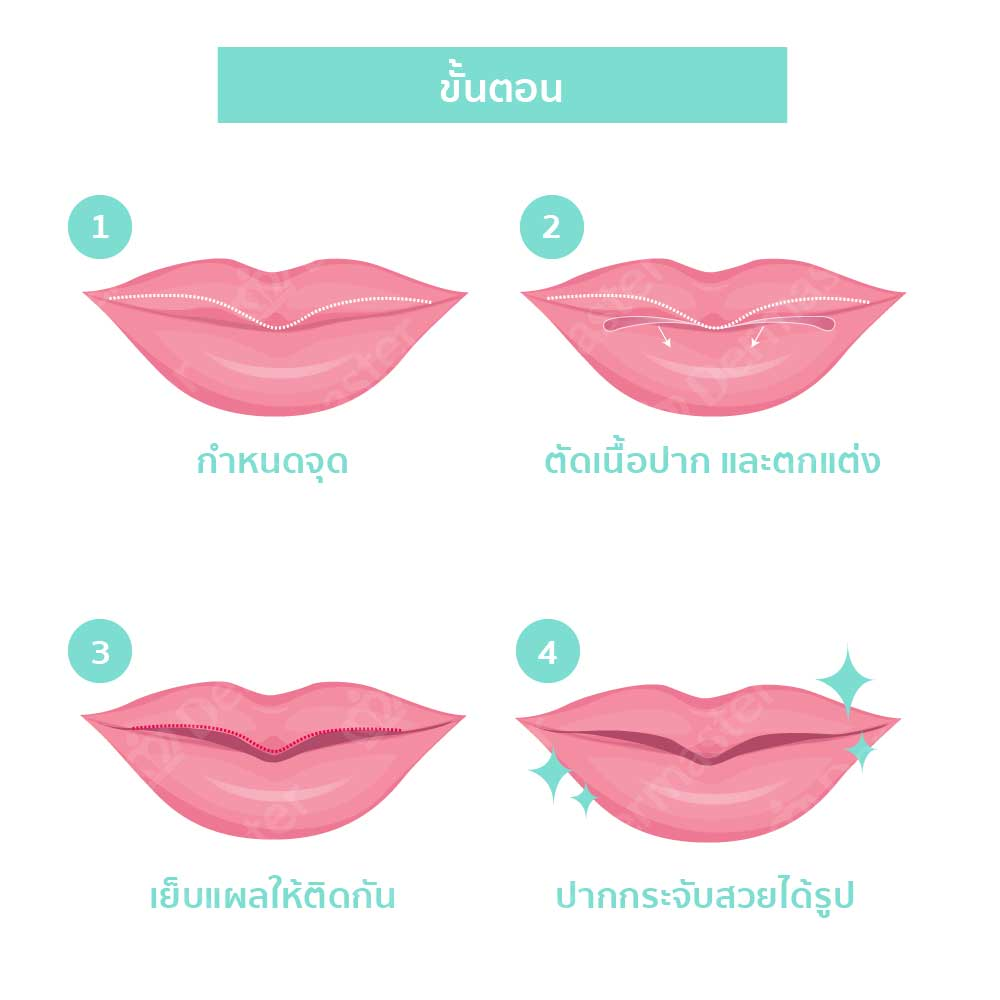 why-dermaster-lips-surgery-6