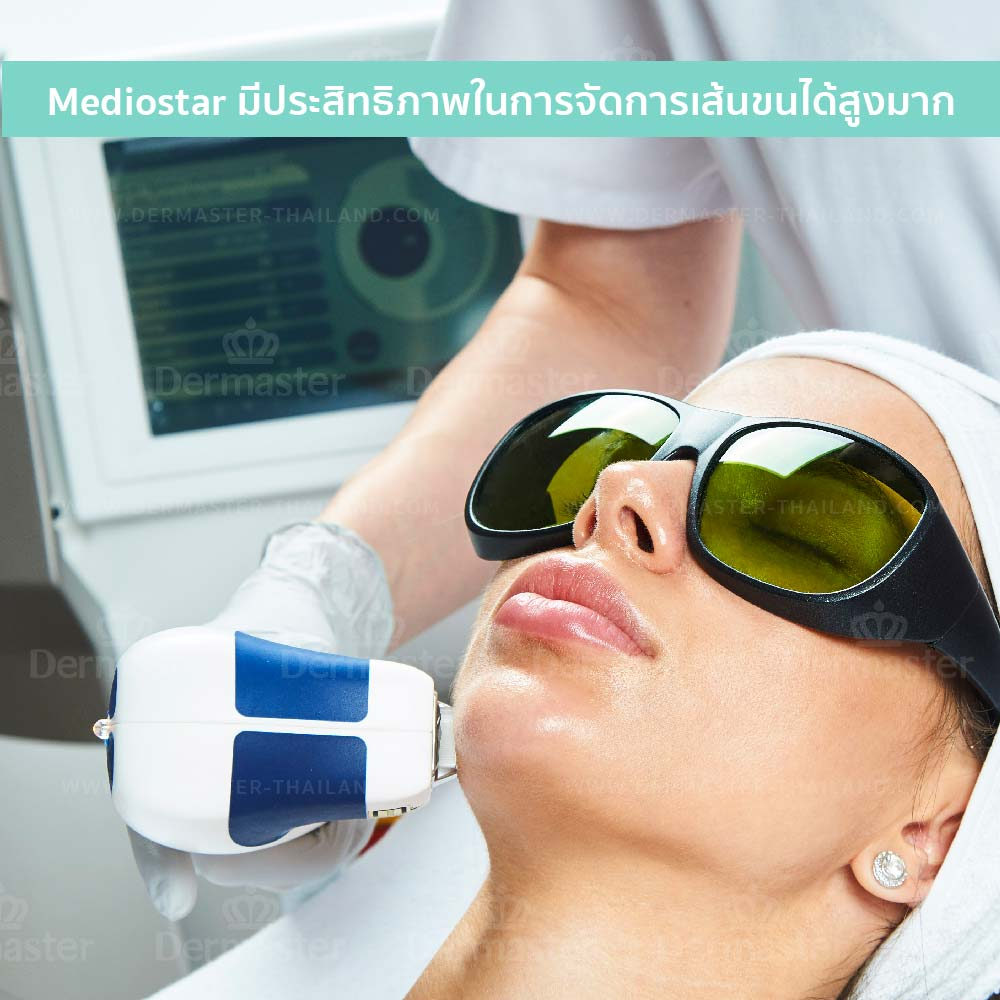 why-dermaster-medi-o-star-hair-remove-diod -1