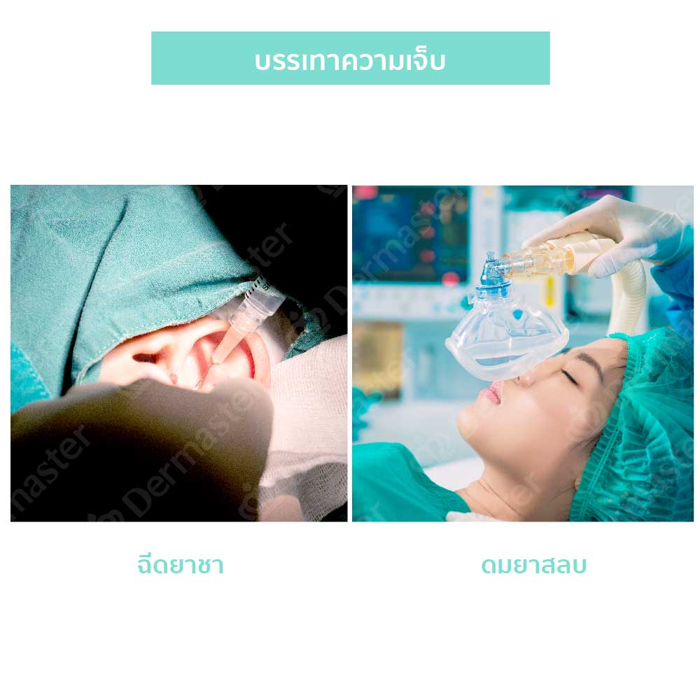 why-dermaster-otoplasty-3
