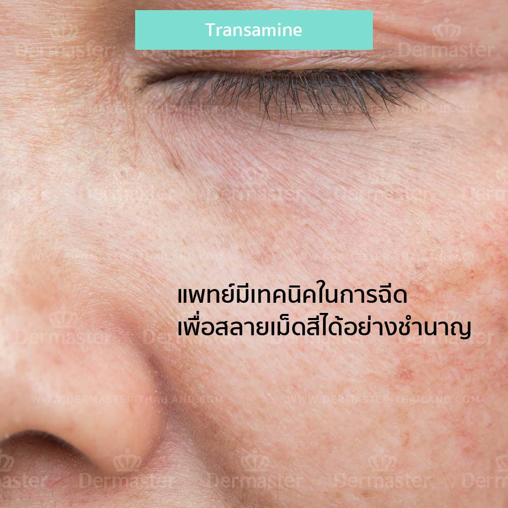 why-dermaster-transamine-1