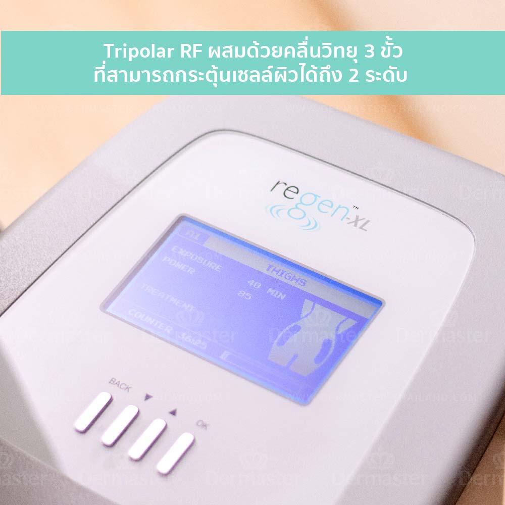 Tripolar射频紧肤 7