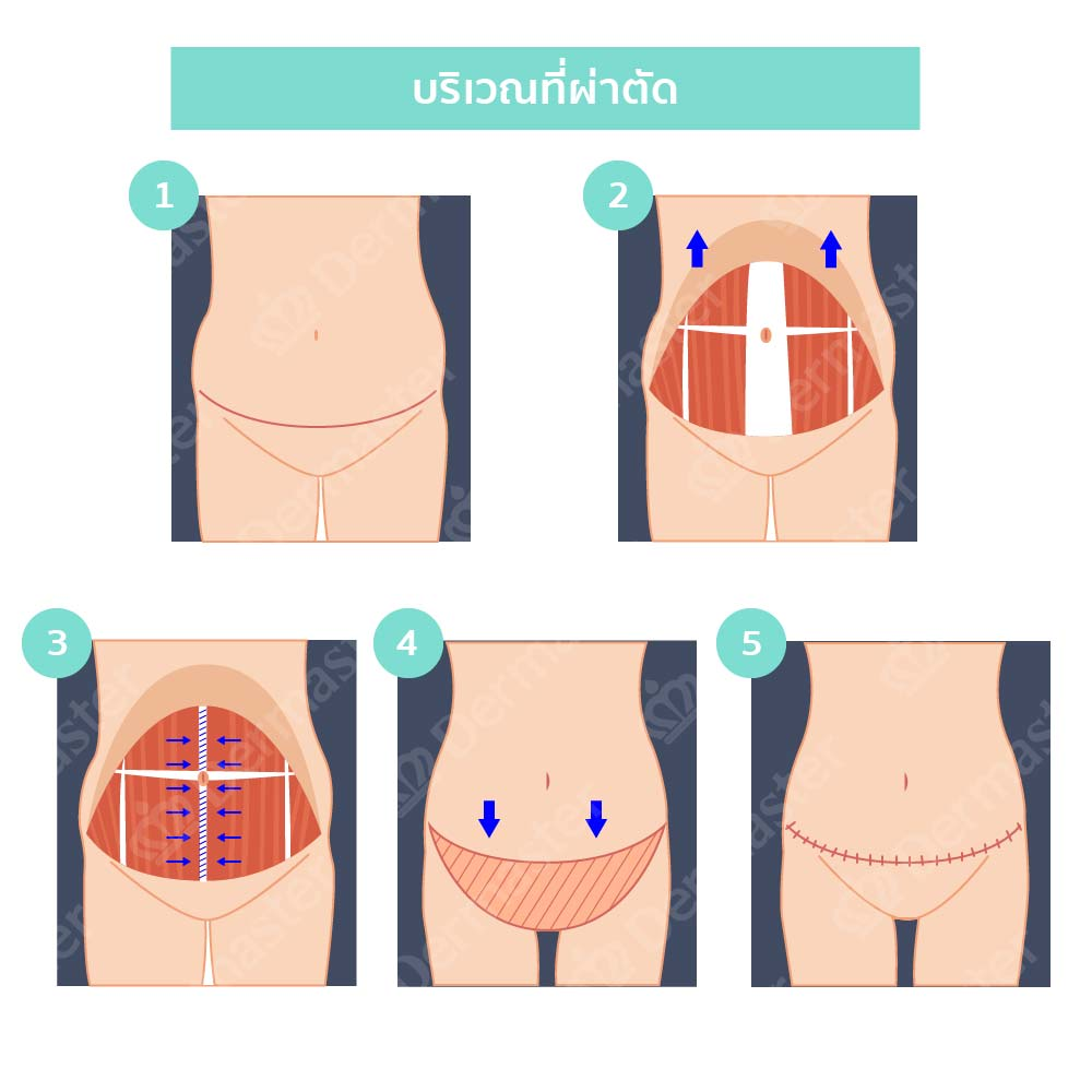 why-dermaster-tummy tuck-4