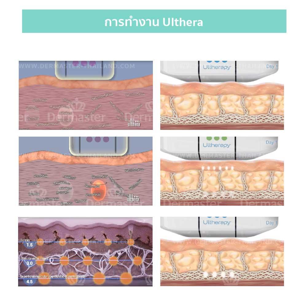 why-dermaster-ulthera-2