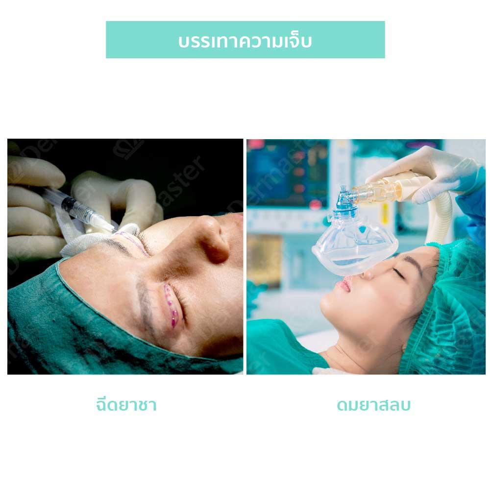 why-dermaster-upper-eyelid-surgery-3
