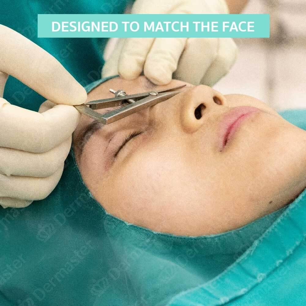 why-dermaster-upper-eyelid-surgery-en-5