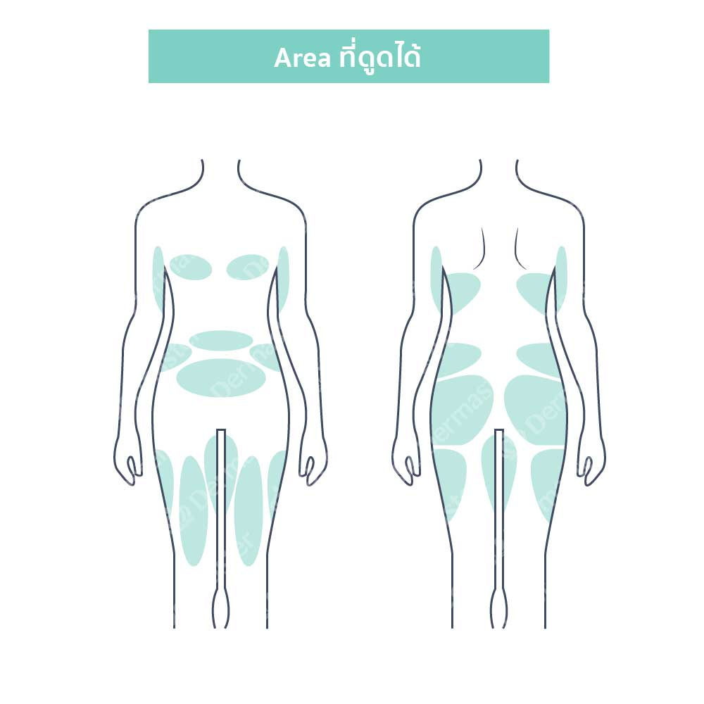 جراحة شفط الدهون 9