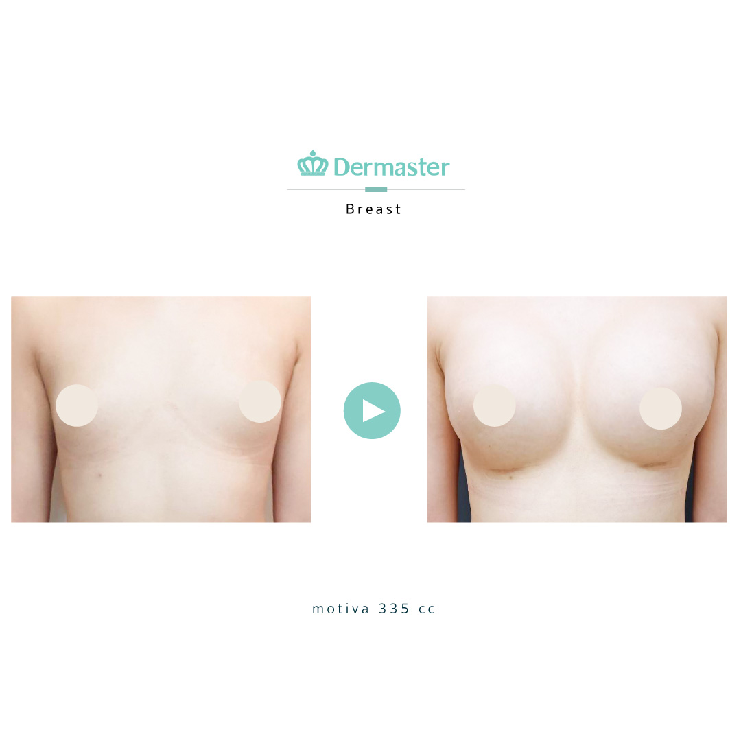 dermaster-motiva-breast-augmentation-review-05