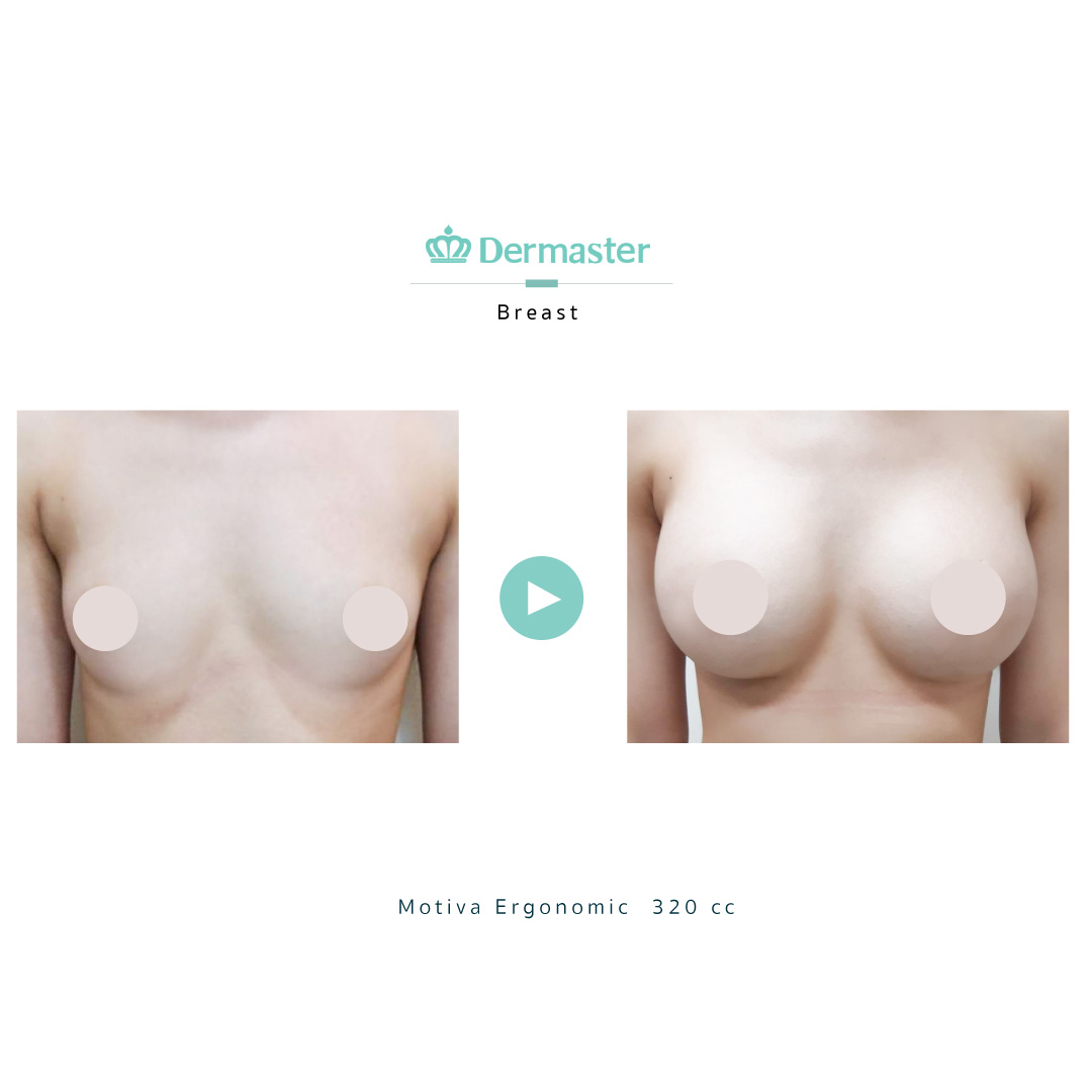 dermaster-motiva-breast-augmentation-review-06