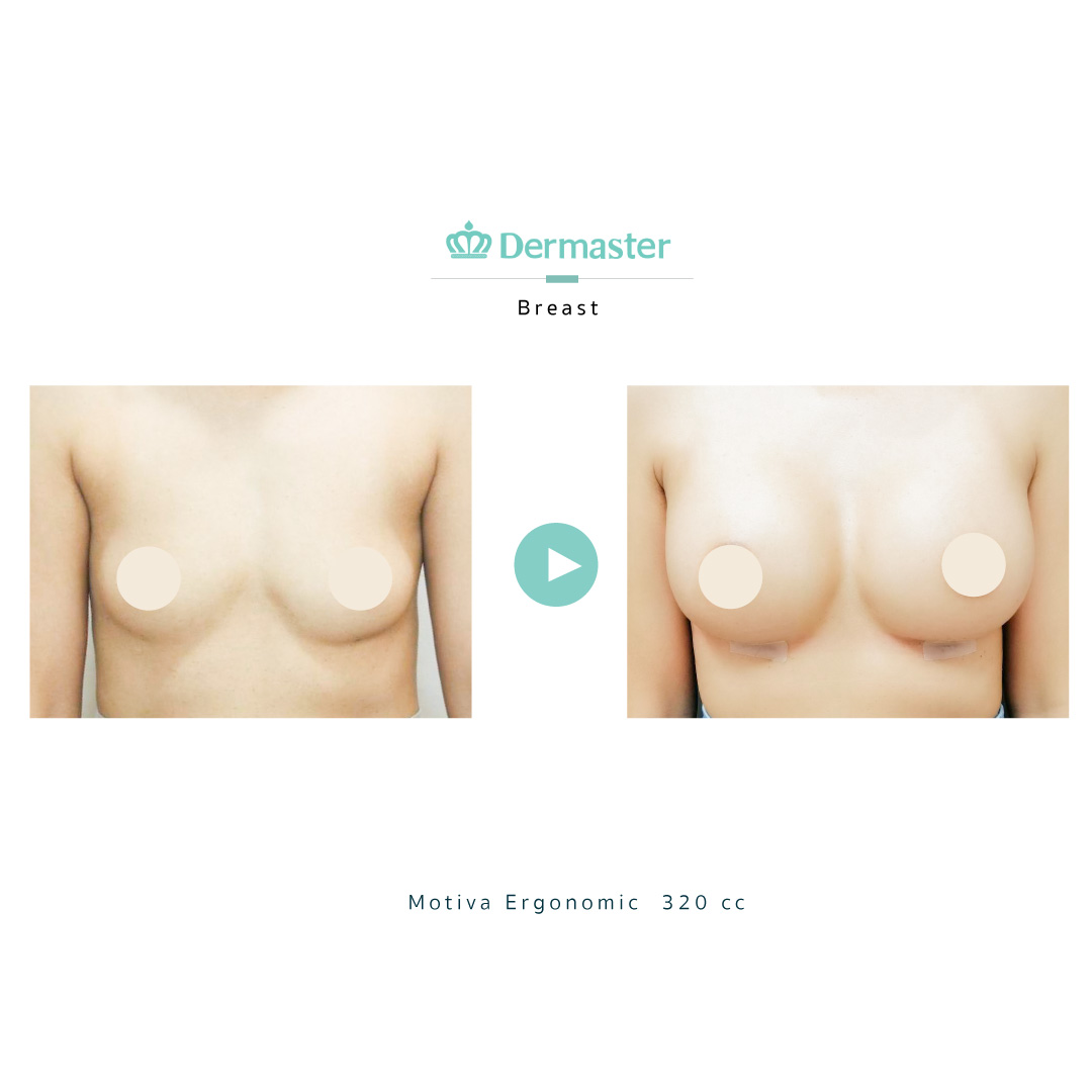 dermaster-motiva-breast-augmentation-review-07