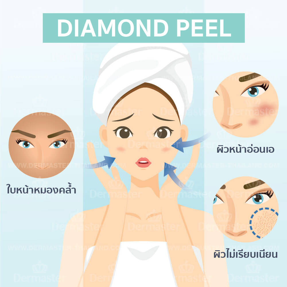 Diamond Peel 4