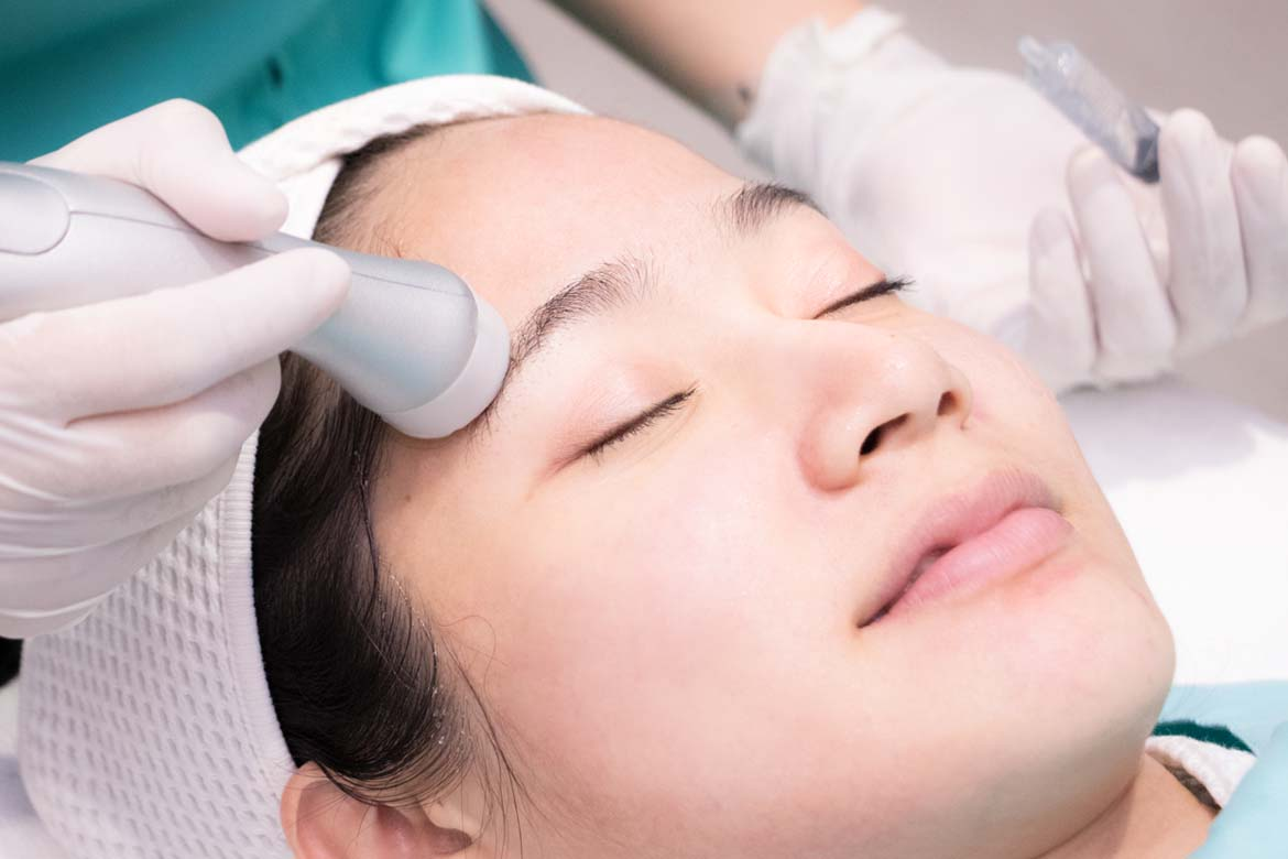 Diamond Peel 2
