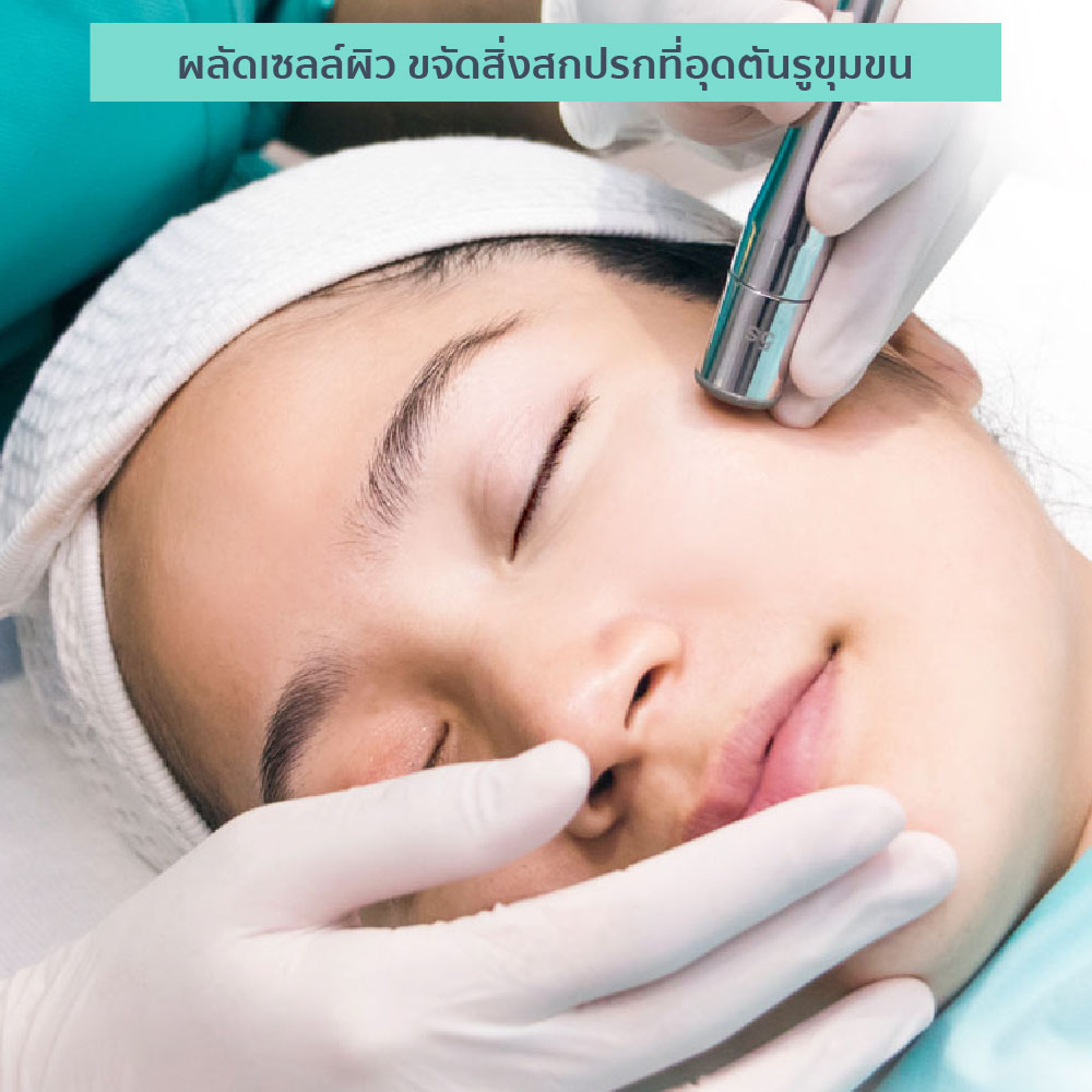 Diamond Peel 5
