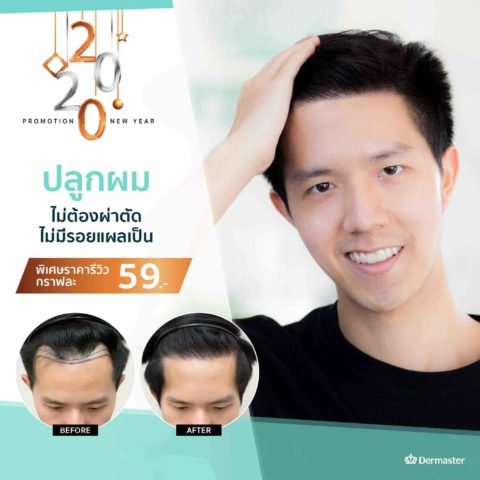 Special Promotion 4