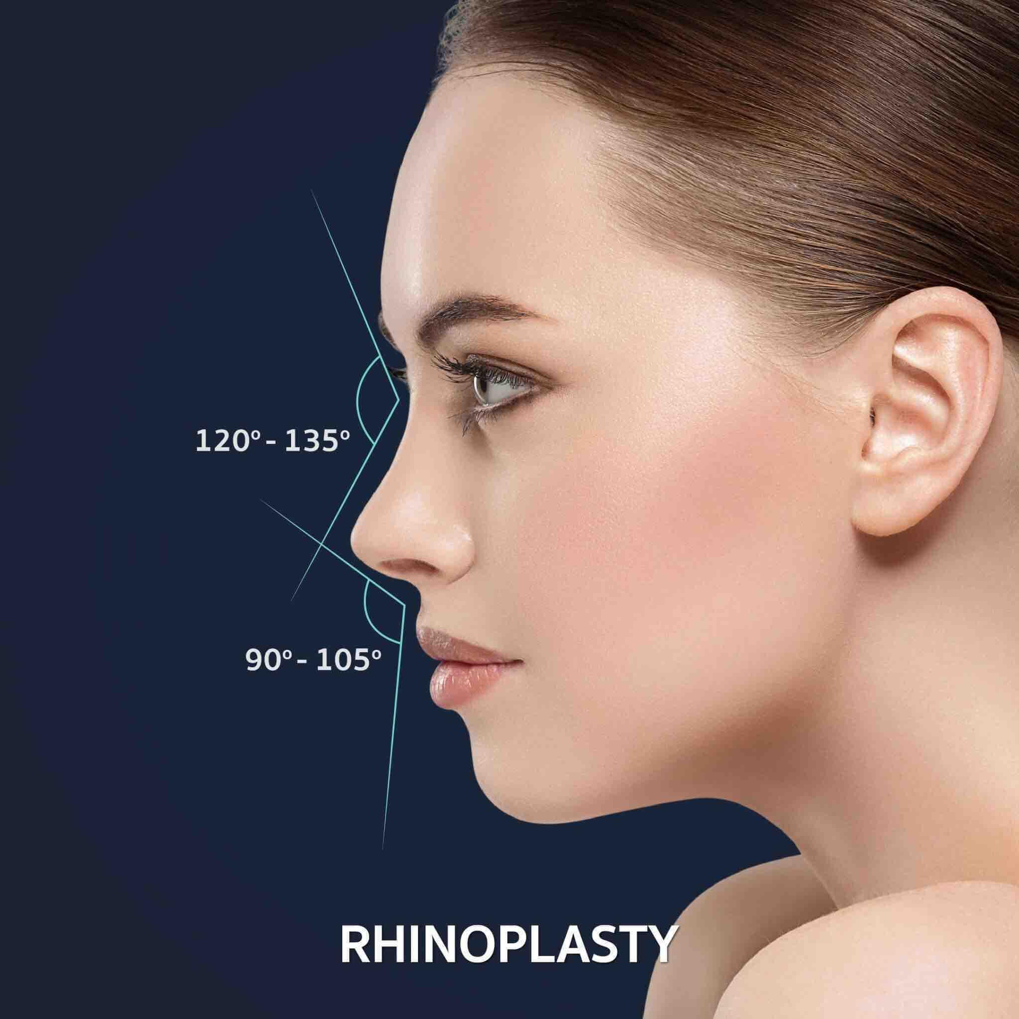 dermaster-poppular-services-rhinoplasty