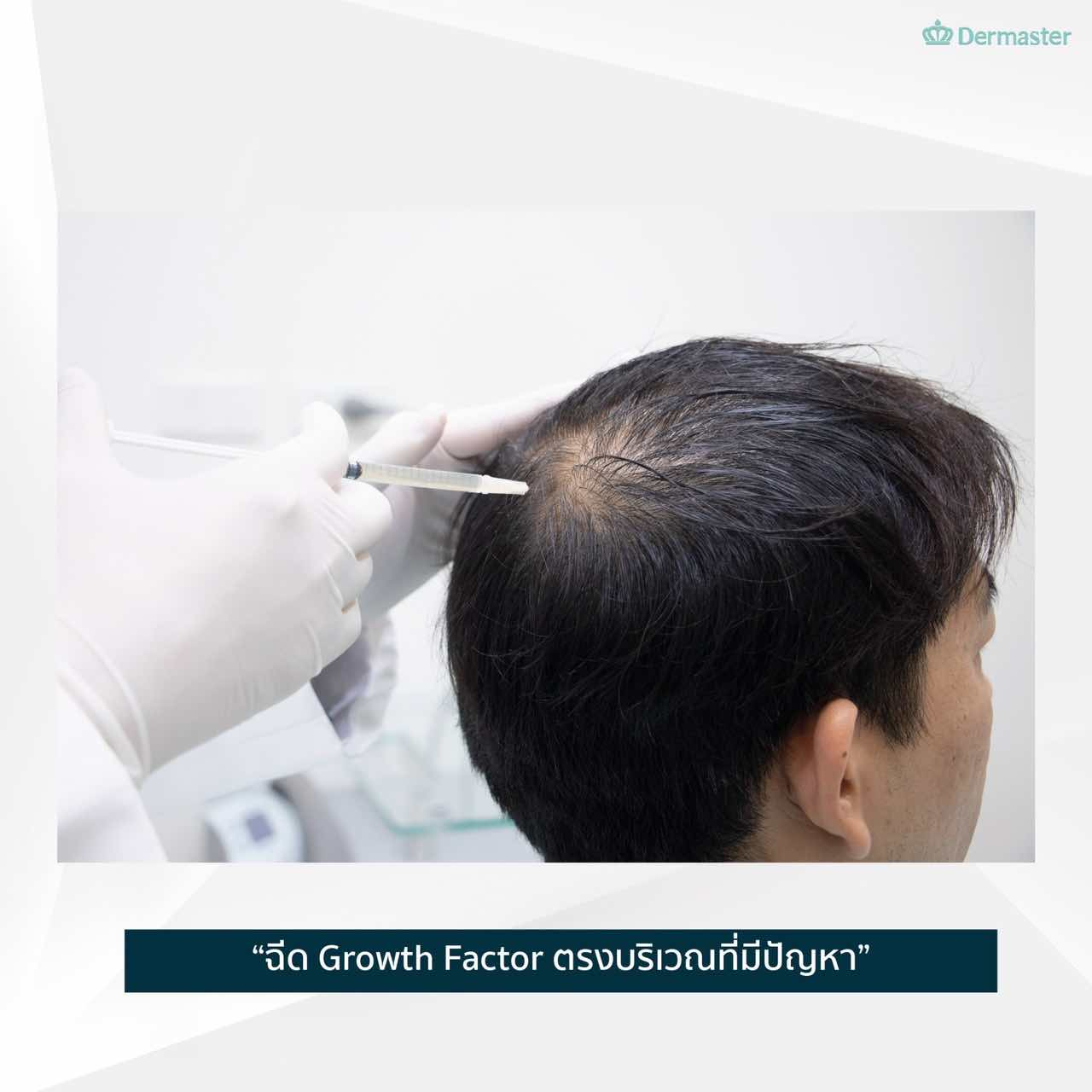 dermaster-hair-growth-service05
