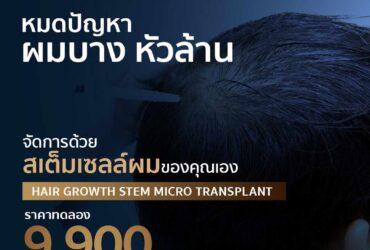 Hair Growth Stem Micro Transplant