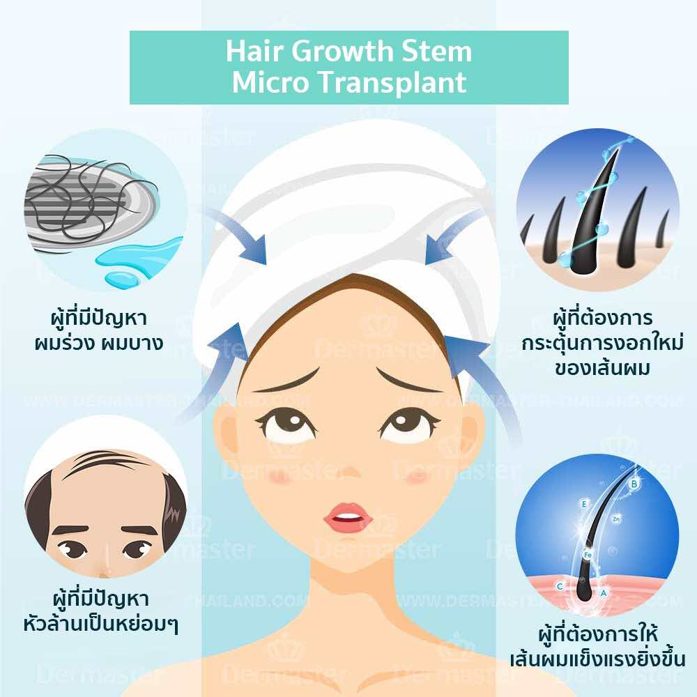 dermaster-hair-growth-stem-04